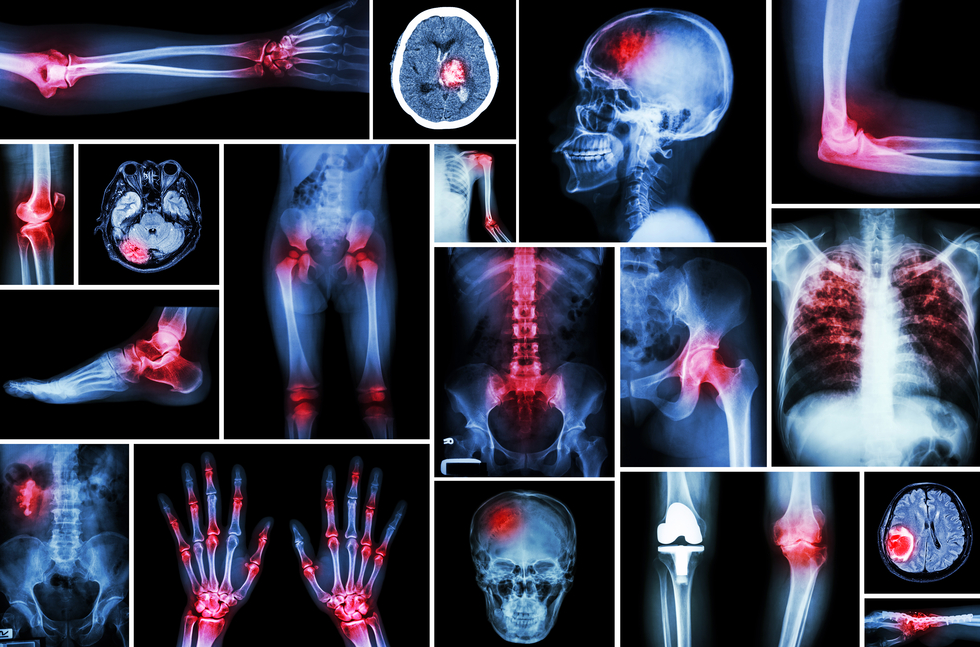 Osteoarthritis Cannabis Relieves Pain
